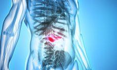 Πώς μπορεί να επιτευχθεί παράταση επιβίωσης στον καρκίνο του πάγκρεας